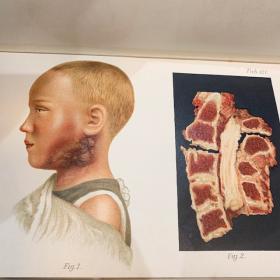 Atlas d'anatomie en couleurs pour autopsie - 1902