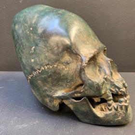 Crâne en bronze déformé - crâne allongé