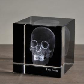 Radiographie 3D Crâne grand