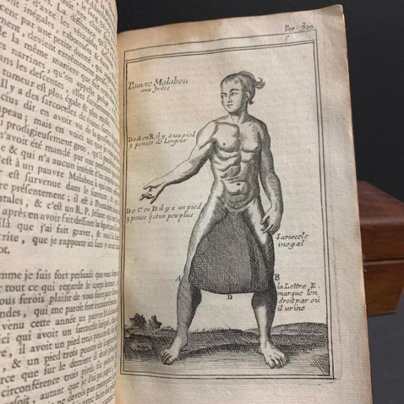 """""""Cours d'opérations de chirurgie, démontrées au Jardin Royal"""" par Dionis 1777 - Livre XVIIIème siècle"""