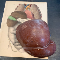 Liver - Anatomical part in painted rubber