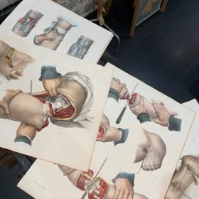 """Planche de médecine opératoire: """"L'Anatomie de L'Homme"""" par le Dr Bourgery et le dessinateur Jacob - 1866 - Lithographie"""