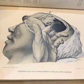 Chirurgie d'Urgence par Lejars - 1909 - Editions MASSON