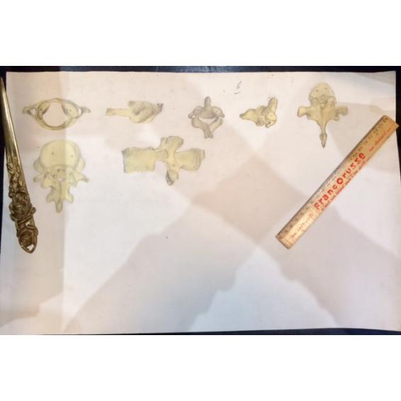 Etude Anatomique au fusain